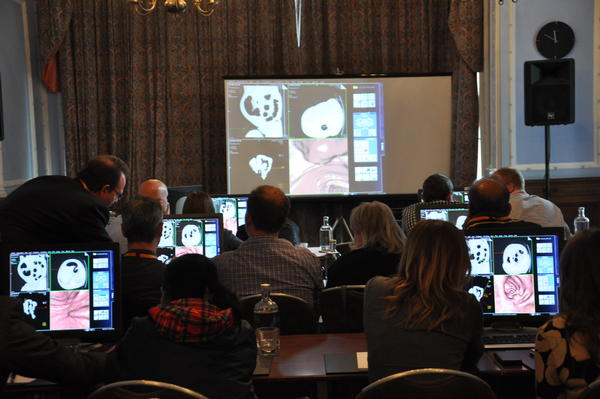 Prof. Olivier Lucidarme's talk on CT Colonography hands on workshop.
